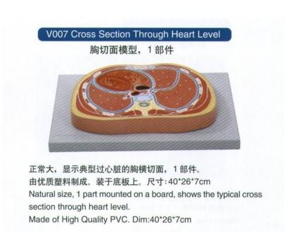 Cross section through heart level